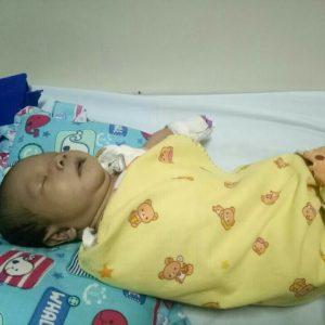 Bayi Arkan yang divonis dokter mengalami kebocoran Jantung Dirawat di RSUP